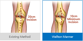 Conventional Surgery technique / Wellton's Muscle-tendon Preservation techique